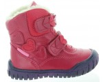 Boots to stop tippy toe walking