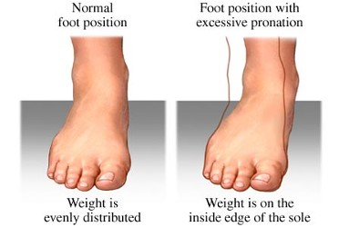 Children and ankles turning inwards