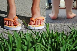 kids-flip-flops-worst-kids-shoes-deforming-feet