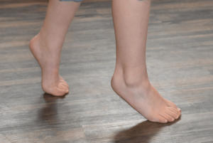 Child with muscle weakness and tip toe walking